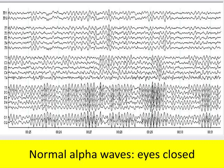 Normal alpha waves: eyes closed