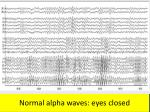 normal alpha waves eyes closed
