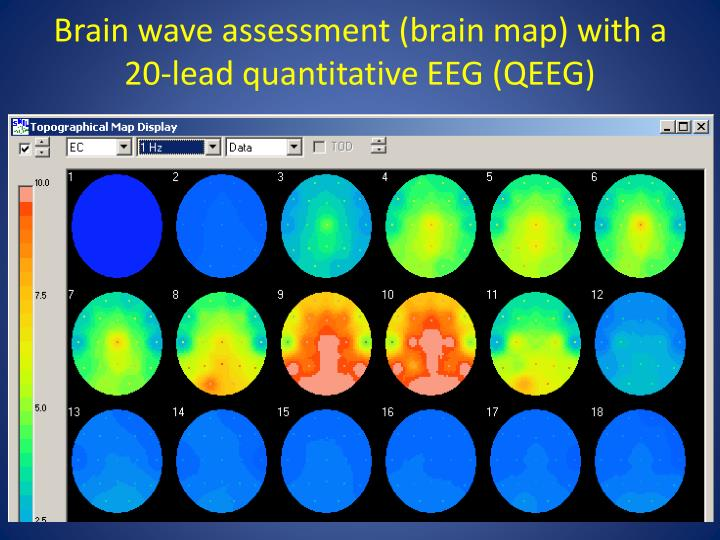Brain wave assessment (brain map) with a