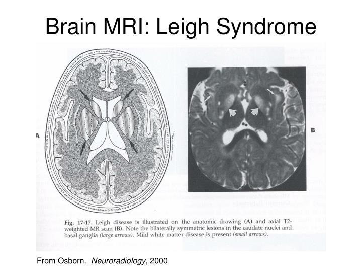 Brain MRI: Leigh Syndrome