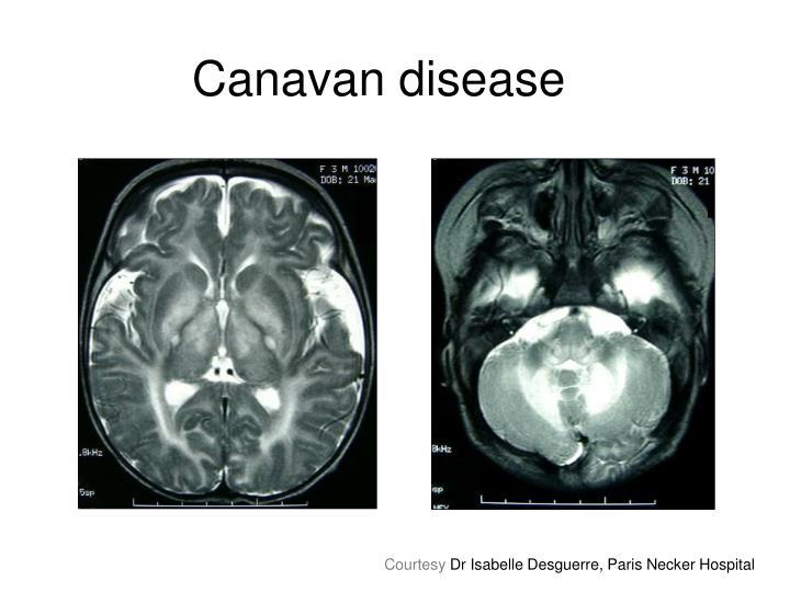 Canavan disease