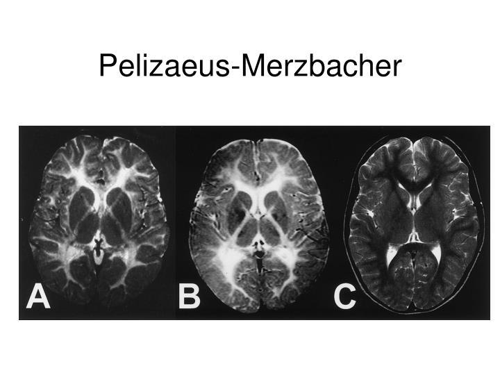 Pelizaeus-Merzbacher