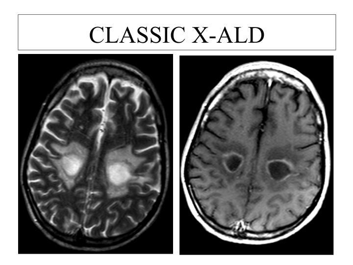 CLASSIC X-ALD