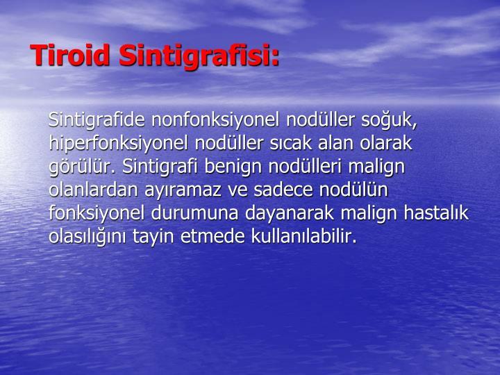 Tiroid Sintigrafisi: