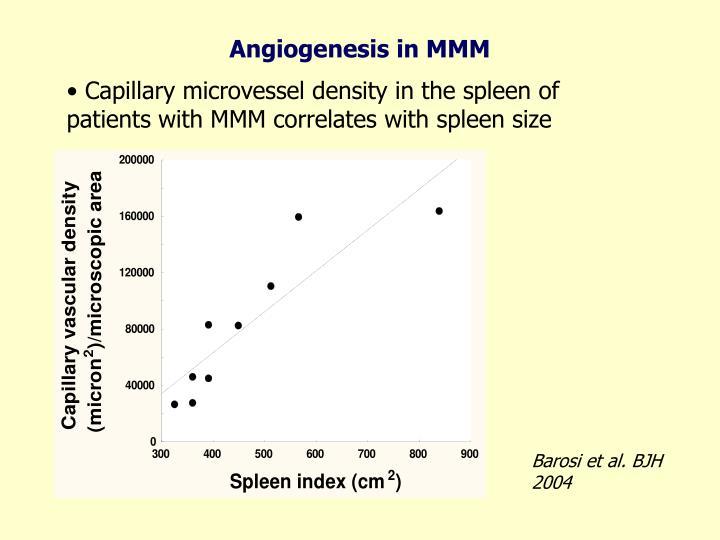 Angiogenesis in MMM