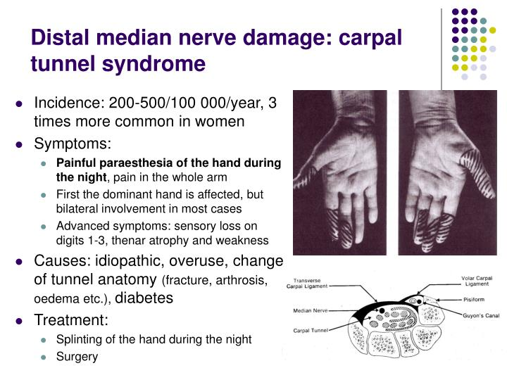 Distal median nerve damage: carpal tunnel syndrome