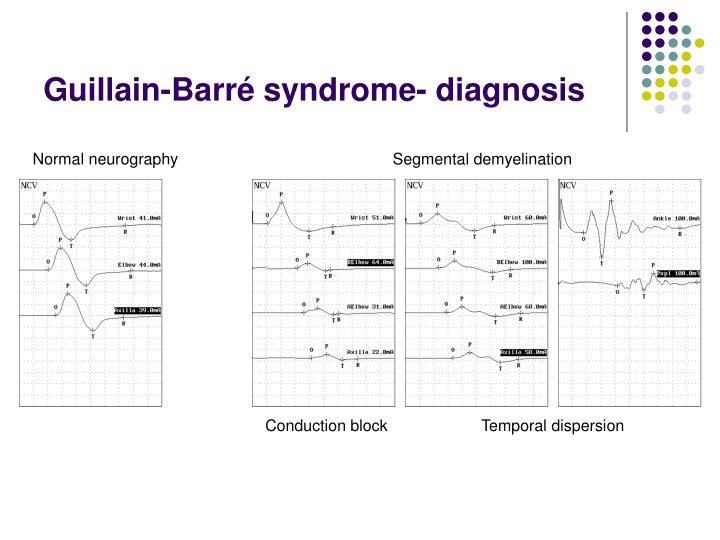 Guillain-Barré syndrome- diagnosis