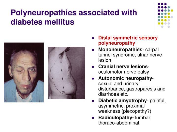 Polyneuropathies associated with diabetes mellitus