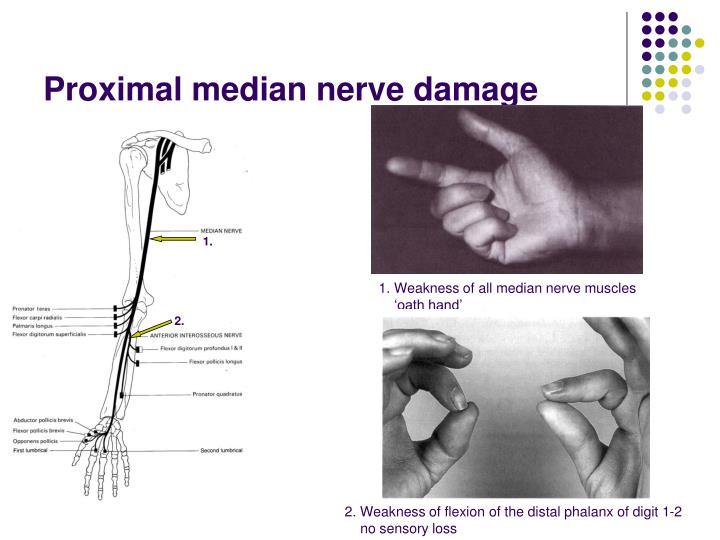 Proximal median nerve damage