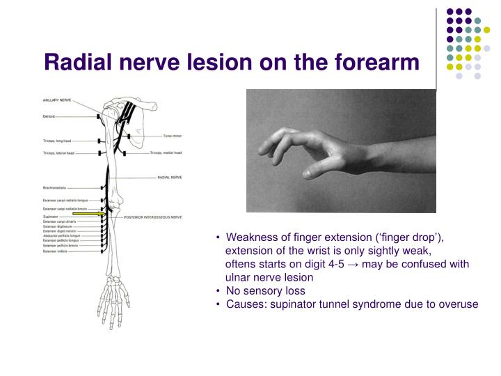 Radial nerve lesion on the forearm