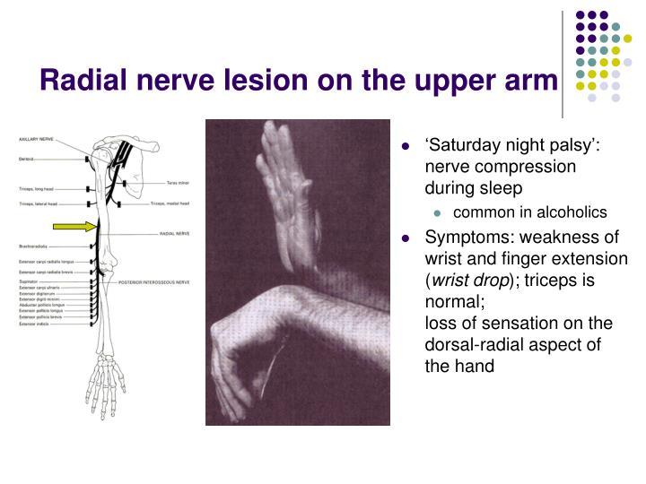 Radial nerve lesion on the upper arm