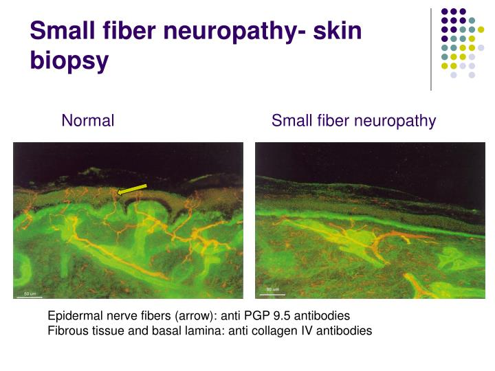 Small fiber neuropathy- skin biopsy