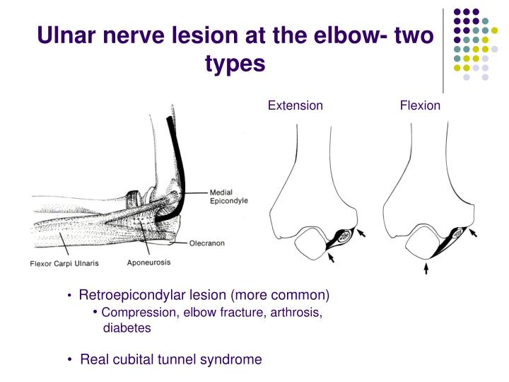 Ulnar nerve lesion at the elbow- two types