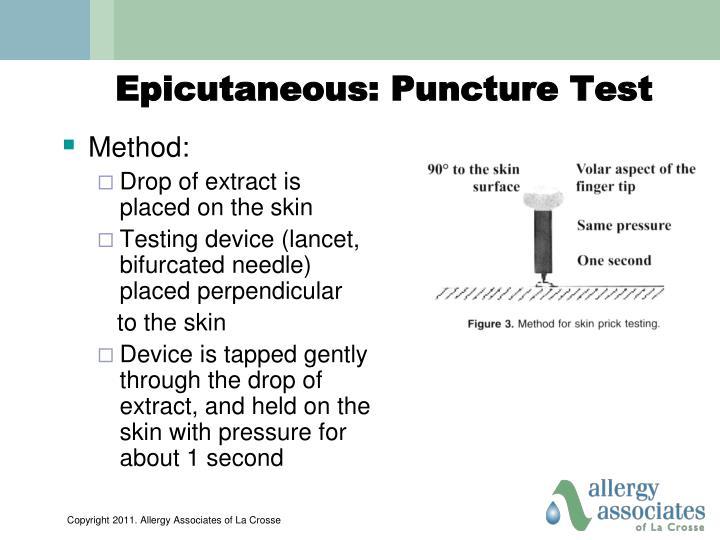 Epicutaneous: Puncture Test