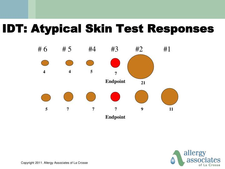 IDT: Atypical Skin Test Responses