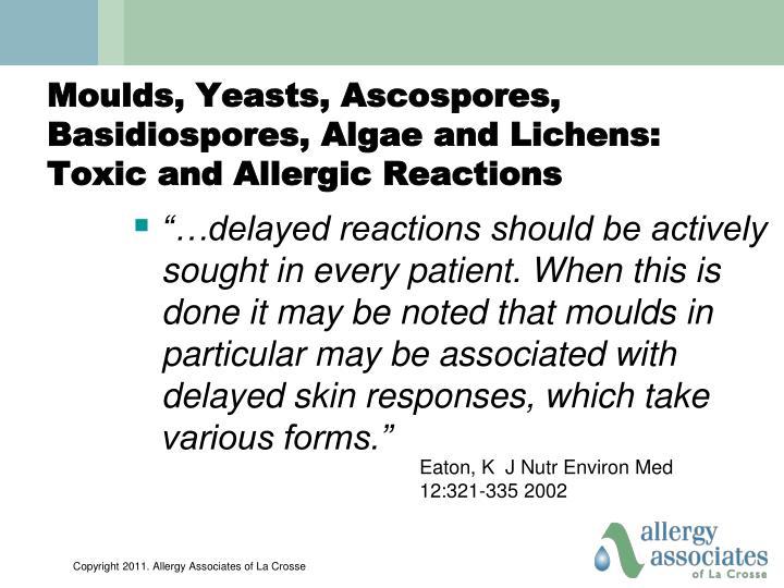 Moulds, Yeasts, Ascospores, Basidiospores, Algae and Lichens: