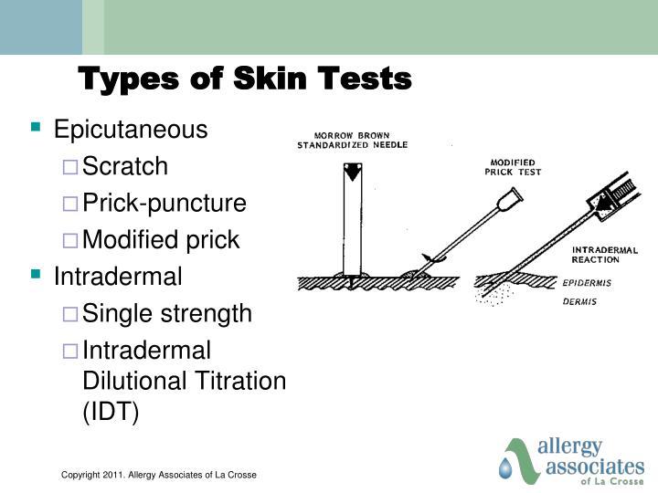 Types of Skin Tests