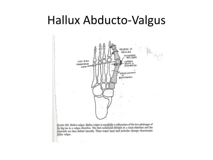 Hallux Abducto-Valgus