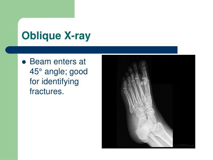 Oblique X-ray