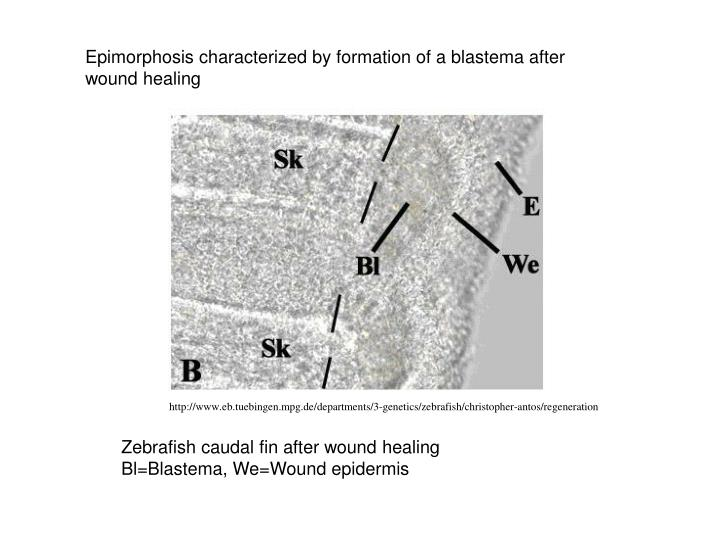 Epimorphosis characterized by formation of a blastema after wound healing