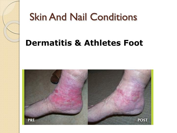 Skin And Nail Conditions