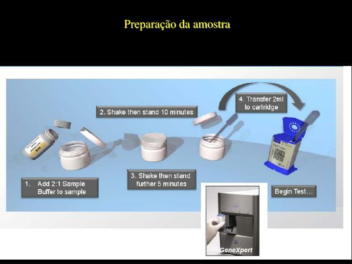 Preparação da amostra