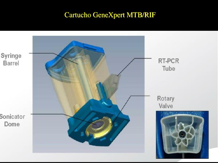 Cartucho GeneXpert MTB/RIF