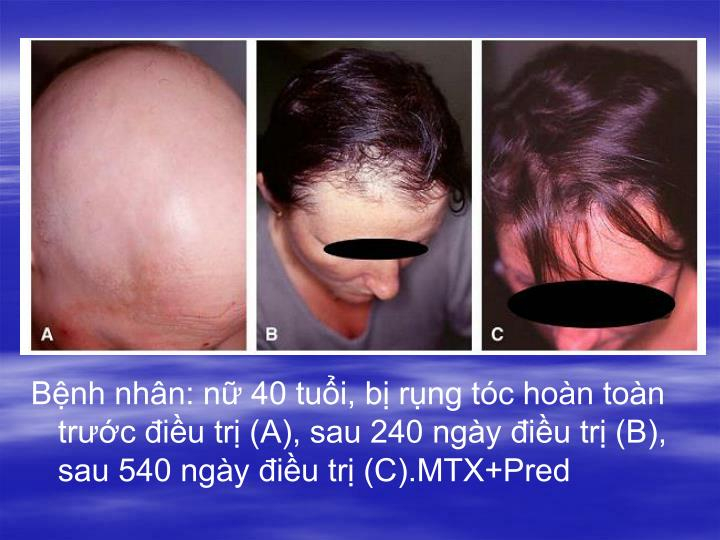 Bệnh nhân: nữ 40 tuổi, bị rụng tóc hoàn toàn trước điều trị (A), sau 240 ngày điều trị (B), sau 540 ngày điều trị (C).MTX+Pred