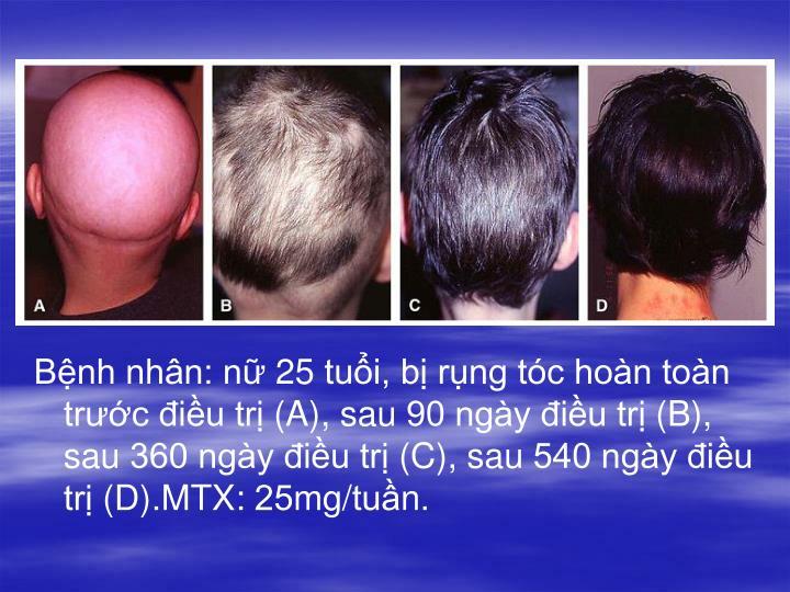 Bệnh nhân: nữ 25 tuổi, bị rụng tóc hoàn toàn trước điều trị (A), sau 90 ngày điều trị (B), sau 360 ngày điều trị (C), sau 540 ngày điều trị (D).MTX: 25mg/tuần.