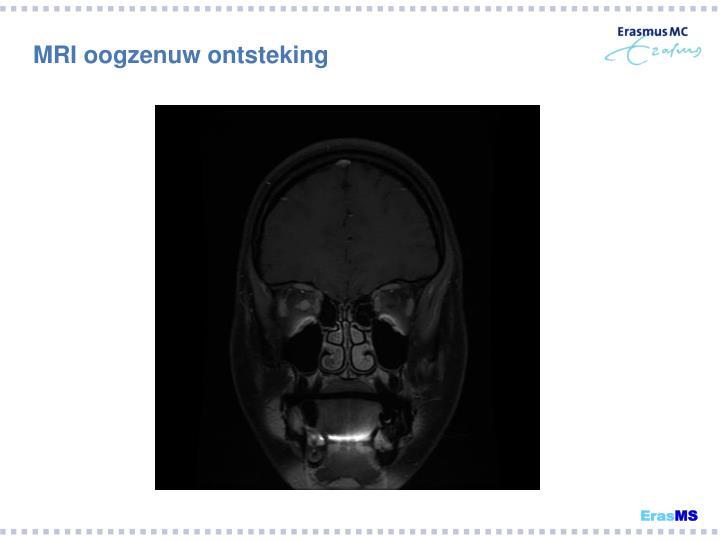 MRI oogzenuw ontsteking