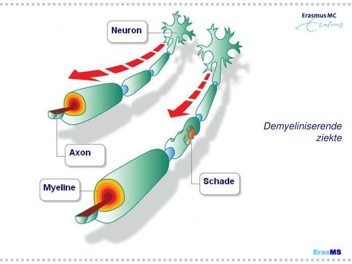 Demyeliniserende ziekte