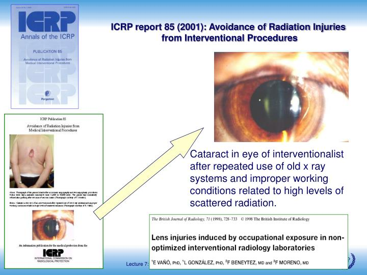 ICRP report 85 (2001): Avoidance of Radiation Injuries