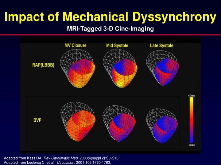 Impact of Mechanical Dyssynchrony