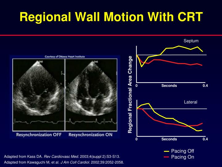 Regional Wall Motion With CRT