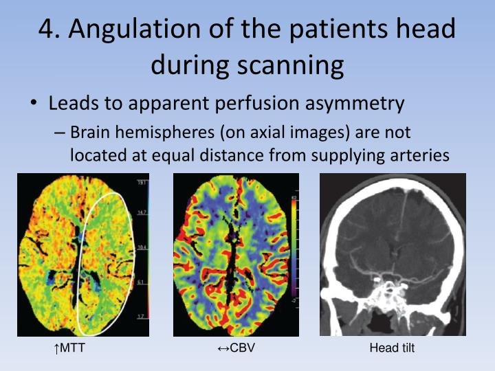 4. Angulation of the patients head during scanning