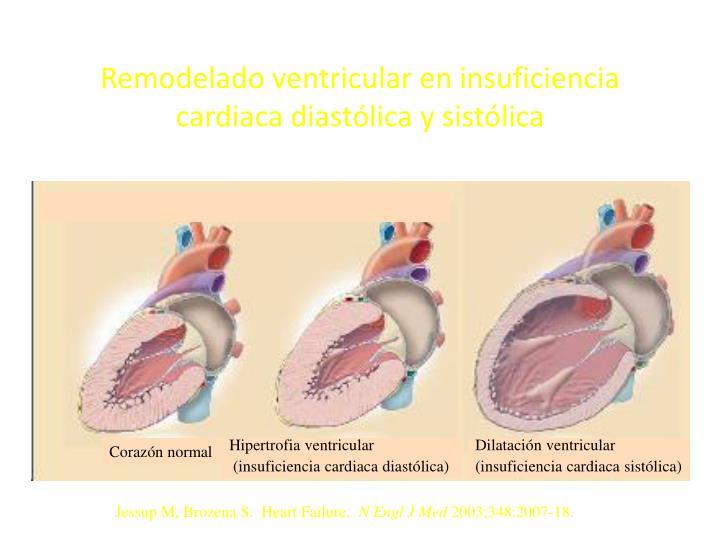 Remodelado ventricular en insuficiencia cardiaca diastólica y sistólica