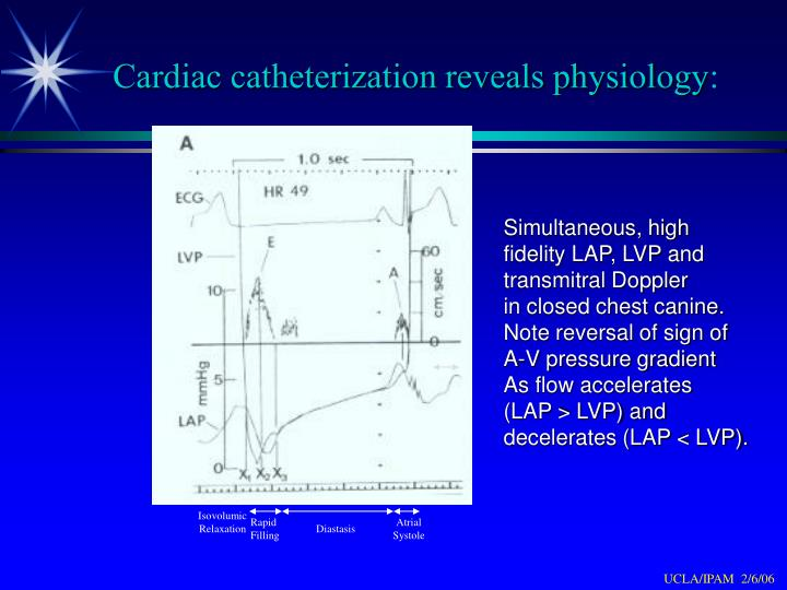 Cardiac catheterization reveals physiology