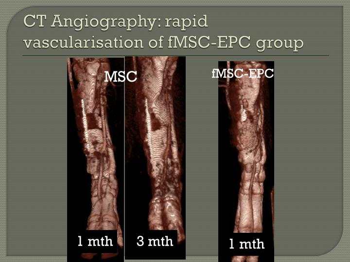 CT Angiography: rapid