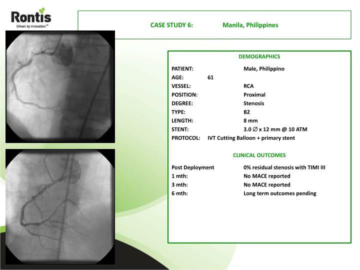 CASE STUDY 6: Manila, Philippines
