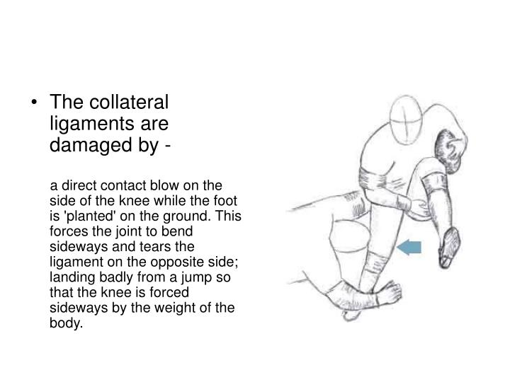 The collateral ligaments are damaged by -