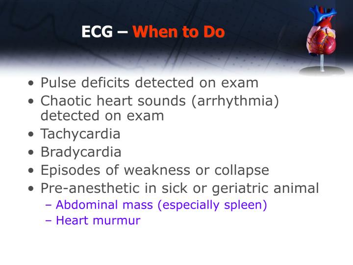 ECG –