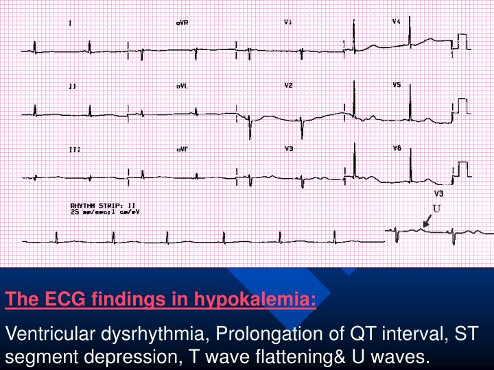 The ECG findings in hypokalemia: