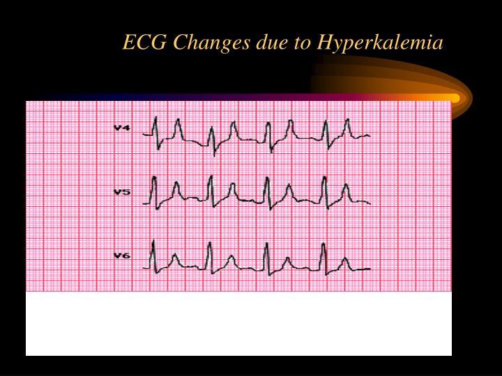 ECG Changes due to Hyperkalemia