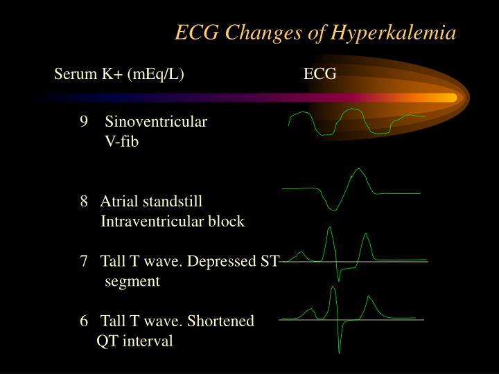 ECG Changes of Hyperkalemia