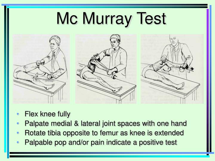 Mc Murray Test