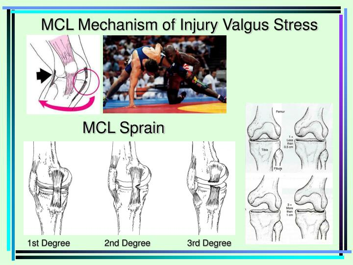 MCL Mechanism of Injury Valgus Stress