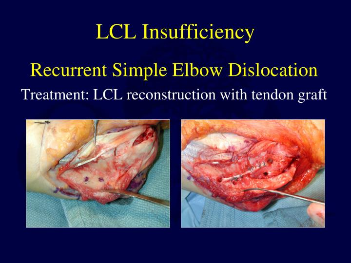 LCL Insufficiency