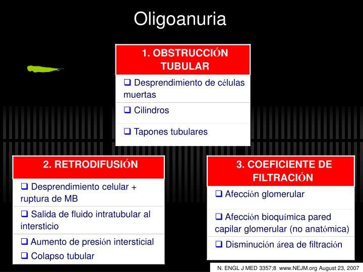 Oligoanuria