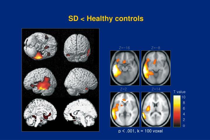 SD < Healthy controls