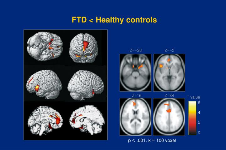 FTD < Healthy controls